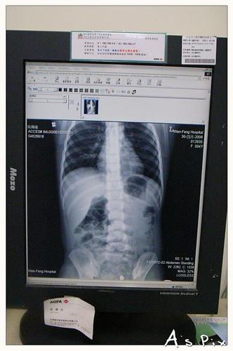 小瑜的第二次X光與第二次急診